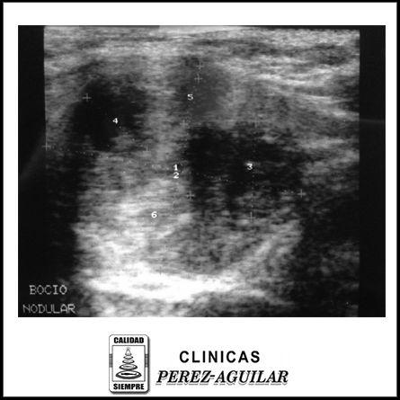 Actualmente la Ultrasonografía es considerada como el estándar de oro en la evaluación de la glándula tiroides, el volumen tiroideo y la detección de nódulos sólidos o quistes en el interior de su …