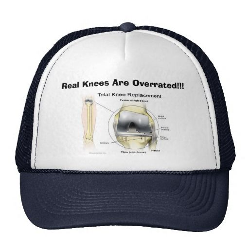 Real Knees Are Overrated!!! Hat