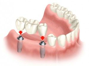 How do dental implants work and what do they cost?