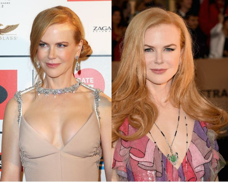 Nicole Kidman News Actress Removes Breast Implants Find