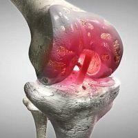 Gli ortopedici ci ingannano! Le articolazioni guariscono con una semplice cura