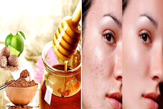 Confira a receita caseira de Como remover manchas no rosto para obter uma pele lisa …   – remedios caseiros