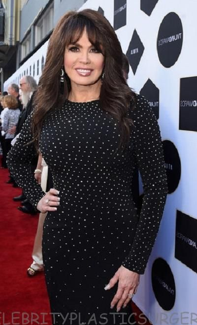 Pin On Marie Osmond Plastic Surgery Before And After