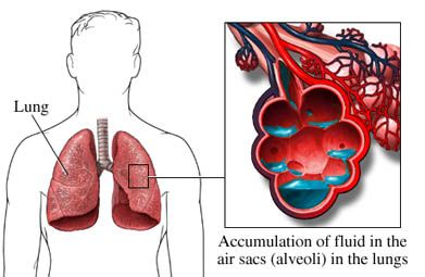 Pulmonary Edema (or Oedema in British/English):  Causes & Symptoms