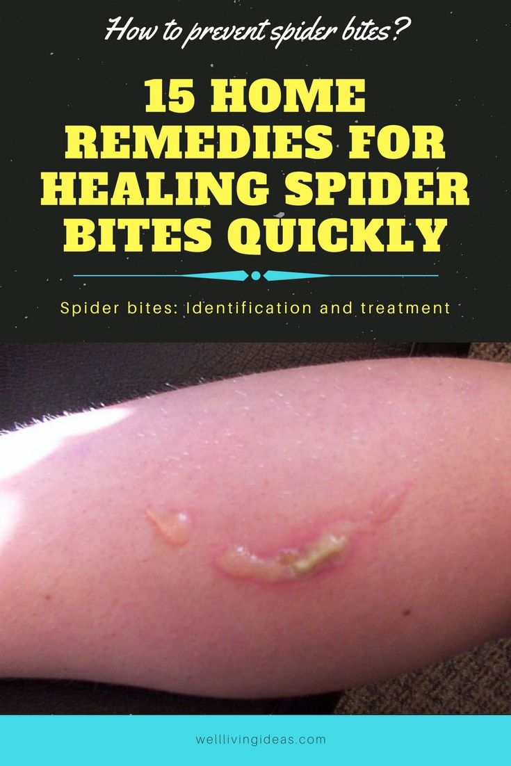How to Get Rid of Blood Blisters in the Mouth