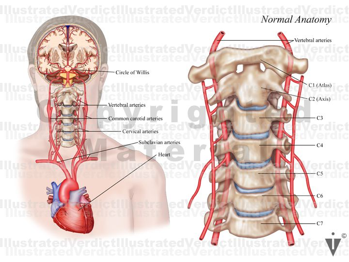 vertebral artery 799w3lg | Anatomical Body Visuals | Vertebral artery, Gladiator sandals, Combat