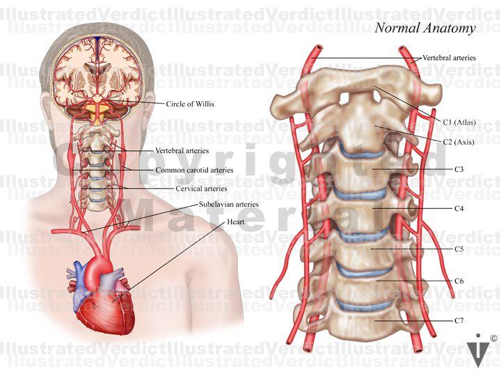 vertebral artery 799w3lg   Anatomical Body Visuals   Vertebral artery, Gladiator sandals, Combat