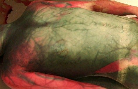 During the decomposition process the abdomen develops a green discoloration after 24–36 hours. Bacteria multiply within the vasculature, and their presence leads to haemolysis and decomposition of the blood within those vessels. This process can be seen as discolouration of the vessels commonly referred to as postmortem marbling.