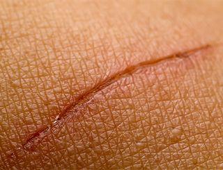 2 remèdes naturels de nos grands mères pour effacer les cicatrices et aider la peau à se régénérer complètement