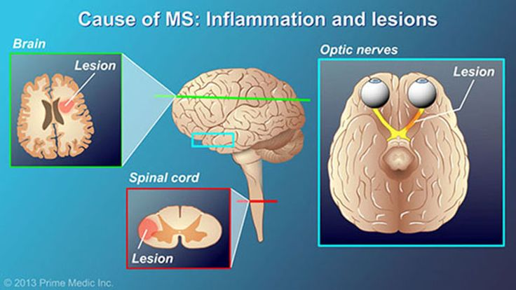 In MS, inflammation causes tissue damage, called lesions, in the brain, spinal cord, and optic nerves.slide show: understanding multiple sclerosis. this slide show describes the causes, common symptoms, and the nature of multiple sclerosis, as well as various types of drug therapies used for the treatment of the disease.