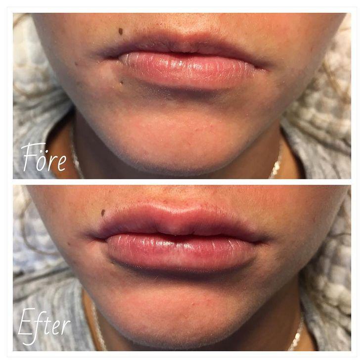 1 ml Revanesse Kiss på tidigare obehandlade läppar skapade mer symmetri  #filler #lipfillers #lips #revanessesverige #revanesse #estetica #nurse #kiss #prollenium #natural #naturallips #beauty