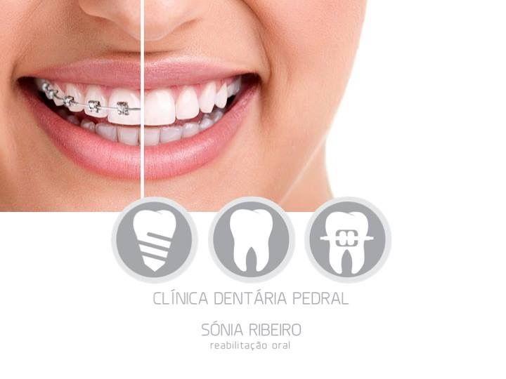 Tratamento ortodôntico com Sistema DAMON. Ortodontia | DAMON System | Dra Liliana Sá Para mais informações contacte 253 546 052 | 918 977 320 | clinicapedral@gmail.com