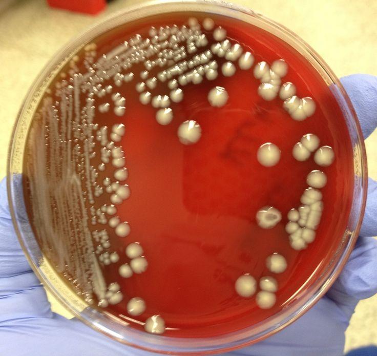 Klebsiella pneumoniae on BAP