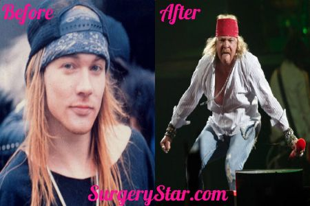 Axl Rose: Plastic Surgery Gone Wrong | http://surgerystar.com/axl-rose-plastic-surgery-gone-wrong/