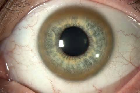 El anillo de Kayser-Fleischer es una franja oscura de color dorado-verdoso que está situada en la periferia de la córnea, en el punto en donde esta se une con la esclerótica. Su presencia indica la posible existencia de la enfermedad de Wilson en el sujeto afectado.