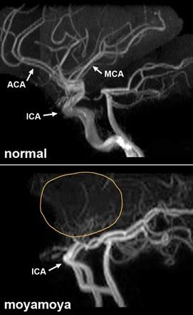 Moyamoya: Rise of the Superficial Temporal Artery, Part II #moyamoya