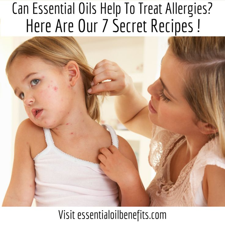Essential Oils for Allergies - I've purchased Tea Tree Oil for my mold & dust mite allergies, & I really think it may be working! Yea!