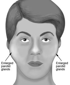 Sjogren's- bilateral enlargement due to fibrosis in the parotids. HY: acute onset of unilateral enlargement is a complication of Sjogren's, ie, B cell lymphoma