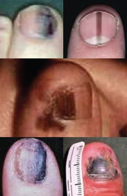 About Acral Lentiginous Melanoma | Nail Cancer Awareness Group