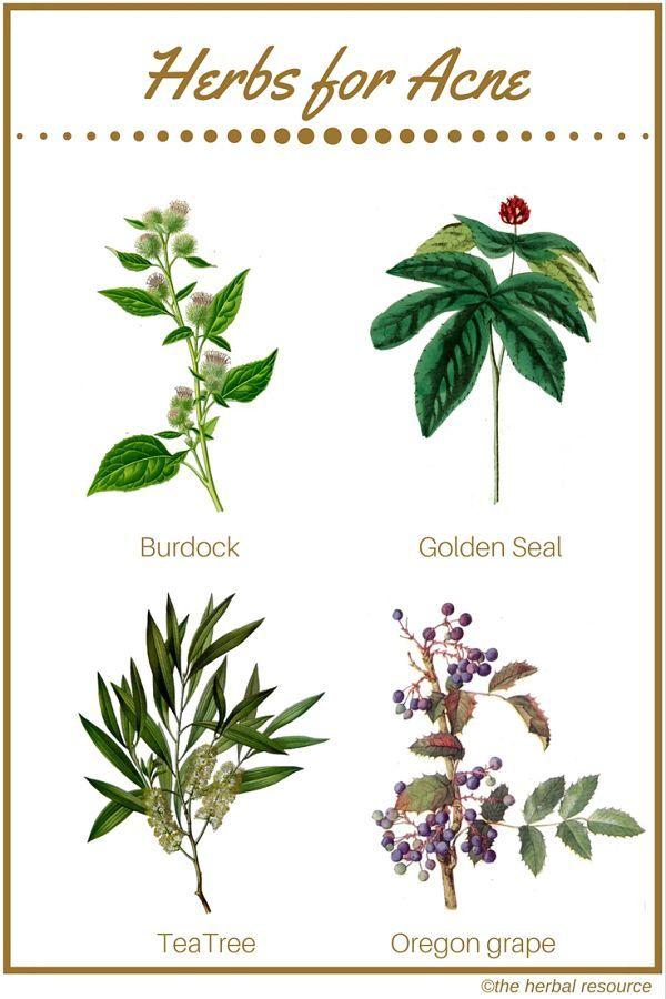 acne herbal remedies