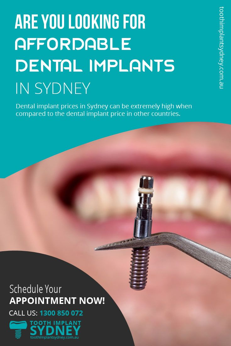 Dental implant prices in Sydney can be extremely high when compared to the #dental_implant price in other countries.