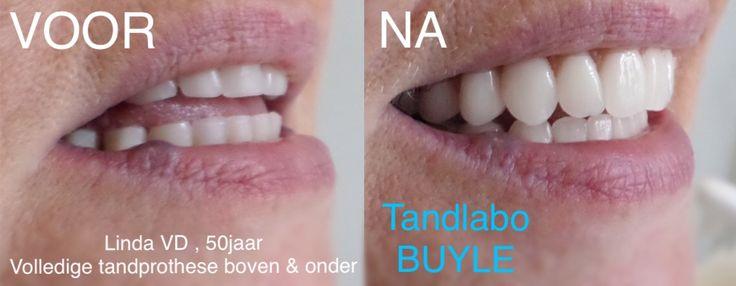 @mooie valse tanden