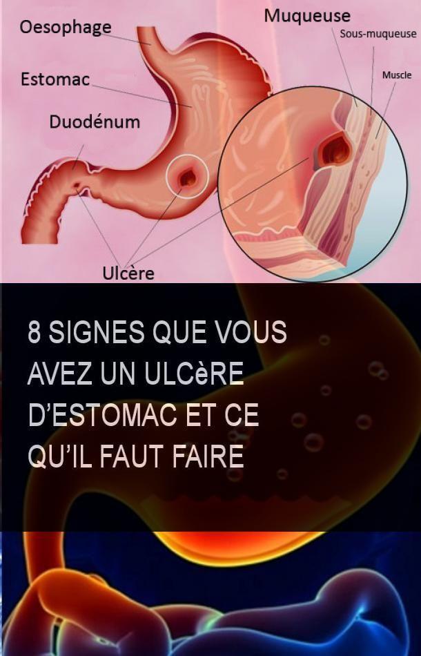 "Les symptômes de Cameron ulcères >> Santé digestive"" title=""Les symptômes de Cameron Ulcères"" style=""width:300px"" /><br /> Une <b>Ulcere de cameron hernie</b> camrronc'est quand l'estomac fait saillie dans l'ouverture de l'œsophage. Petits hernie hiatale provoquent rarement des symptômes du toutet les gens peuvent vivre leur vie sans même savoir qu'ils ont la condition. Agrandir hernies hiatale xe, cependant, permet à la nourriture et l'acide gastrique de voyager dans l'œsophageprovoquant une variété de problèmes. Une des complications peuvent être des ulcères Cameronqui sont des érosions linéaires le long des plis gastriques d'une hernie hiatale. Les ulcères sont normalement mincesuperficielle <b>Ulcere de cameron hernie</b> non des saignementsmais ils peuvent devenir enflammés au fil du temps.</p> <p> Les patients seront parfois la difficulté à respirer et à avaler. Étant donné que ces symptômes peuvent ressembler à ceux d'une crise cardiaque, il est toujours important de consulter un médecin pour un diagnostic correct. Ulcères Cameron peuvent exacerber les symptômes classiques de la hernie hiatale. Si graveulcères Cameron peuvent également causer des saignements de l'estomacmenant à l'anémie ferriprive due caameron la perte de sang chronique. Dans des cas extrêmement hernifce saignement peut s'avérer mortelle si elle n'est pas traitée.<br /> A Cameron lesion is a linear erosion or ulceration of the mucosal folds lining the stomach where it is constricted by the thoracic diaphragm in persons with Ulere hiatal hernias. Treatment of anemia with Cameron lesions includes iron supplements and proton-pump inhibitor PPI acid suppression. Surgical hernia repair is sometimes needed. Cameron lesions may lead to bleeding, cajeron may be dee with heartburn or other symptoms of reflux. Generally, Cameron lesions do not cause pain. The diaphragm <strong>Ulcere de cameron hernie</strong> the chest from the abdomen. </p> <p> The esophagus swallowing tube passes through the hiatal"
