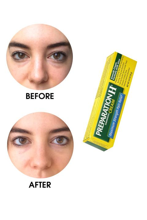 What's really the best way to depuff your eyes? An ELLE.com editor tests the most popular products, devices, and home remedies, documenting the befores and afters only through the unfiltered (and un-Facetuned) lens of an iPhone. The honest results of each, including Preparation H Hemorrhoidal-Cream Maximum Strength here.