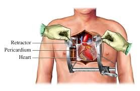 Recovery from Open Heart Surgery: Common Complications