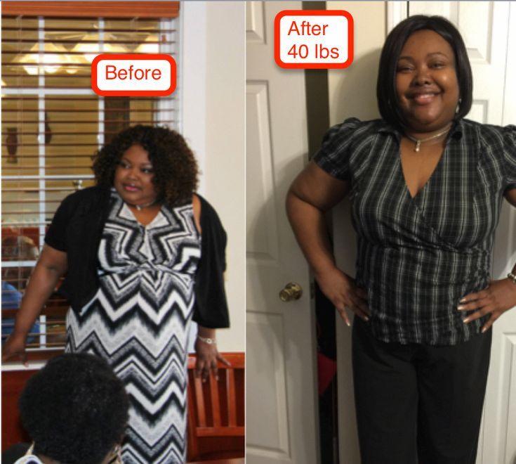 Tolle Idee – fantastischer Magen-Gewichtsverlust –  #fantastischer #gewichtsverlust #Idee #ma…