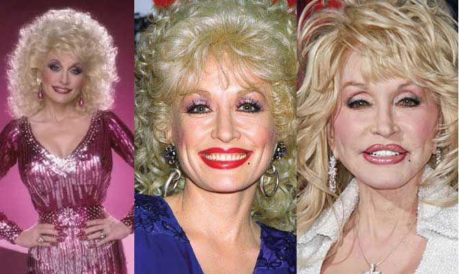 Dolly Parton Plastic Surgery Before and After 2017