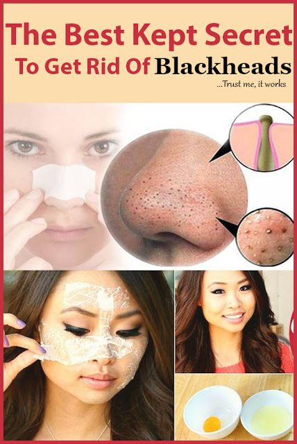 The Best Kept Secret To Get Rid Of Blackheads...Trust me it, works