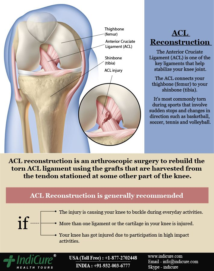 a description of anterior crucial ligament acl and its injuries A surgeon will remove the damaged acl and replace it with tissue to help a new ligament grow in its place with physical therapy, people who have surgery can often play sports again within 12 months.