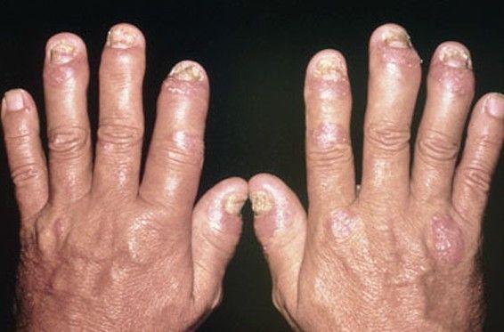 Hand Swelling Psoriatic Arthritis Symptoms