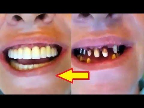 Watch How Dental Implant Procedure | Cosmetic Fillings | Teeth Bleaching...