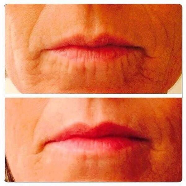 Fill A #Wrinkle...While You #Sleep...No Needle Required! And YES, our new product REDEFINE Acute Care works on lips too....from drinking out of a straw and/or smoking over the years! Acute Care brings a whole new meaning to 'BEAUTY SLEEP'!!!! Only 9 more days to get your PC Perks status so you can order!!! Otherwise, you have to wait until January 2015!! Get it AT COST on the 22nd! Makes for a GREAT holiday gift too
