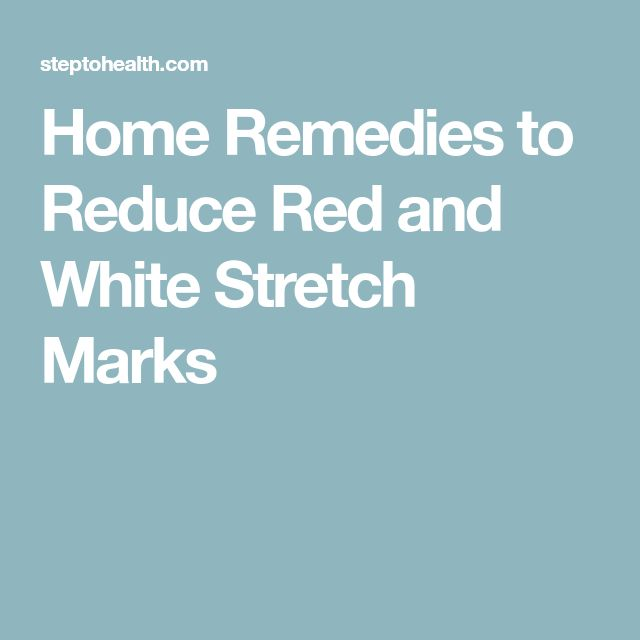 Home Remedies to Reduce Red and White Stretch Marks