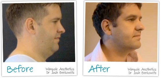 Before and After of A Vaser Liposuction Chin at Wimpole Aesthetics