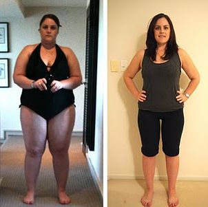 1000+ images about Gastric Sleeve on Pinterest | Fat to ...
