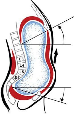 синдром «открытых ножниц»  свойственен мужчинам. Из-за, опять же, сидячего образа жизни, угол наклона таза увеличивается (синдром anterior pelvic tilt), уводя при этом ягодицы назад, а грудь — вперед и вверх.  Мышцы живота при этом расслабляются, перенося нагрузку на нижнюю часть спины. Результат — вываливающийся живот и хронические боли в пояснице. Отметим, что силовые тренировки при данном нарушении осанки лишь усугубляют проблему, еще сильнее перегружая поясницу