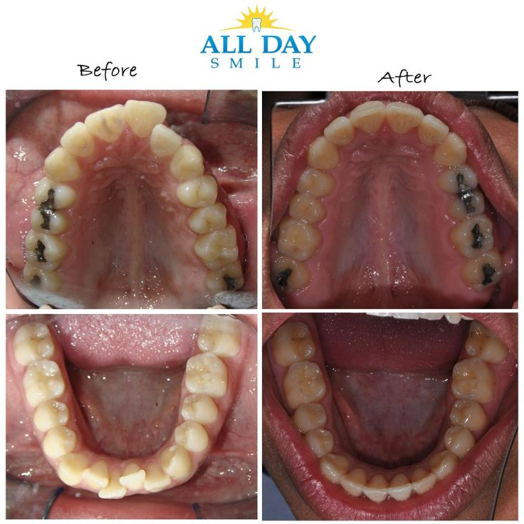 Braces in Anaheim, Ca Braces before and after, Food, Day