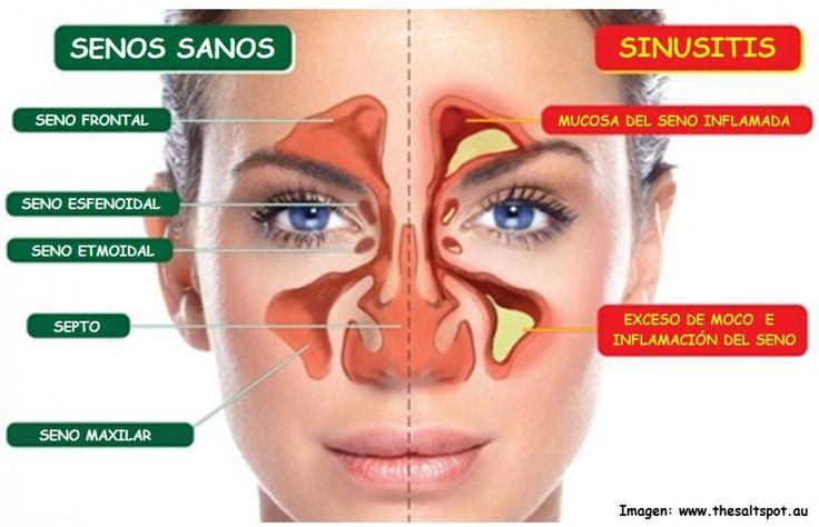 La sinusitis es la inflamación de los senos paranasales que puede ser causada por un hongo, una bacteria o un vir...