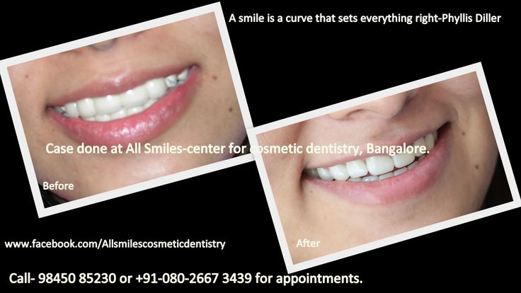 Smile Makeovers in Bangalore. If you are embarrassed by your smile and wish to get a designer smile, Dr. Trivikram, cosmetic dentist in Bangalore has the solution for you. He offers smile makeovers by modifying the existing teeth without braces in just 7-10 days.