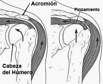Kinebioactiva: Dolor de Hombro: Síndrome de pinzamiento subacromial