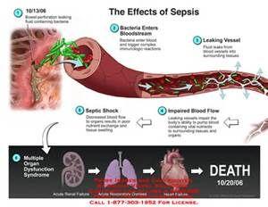 1000  ideas about Septic Shock Symptoms on Pinterest | Sepsis Symptoms