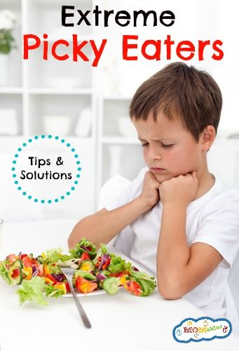 Tips and Solutions for Extreme Picky Eaters | MOMables.com