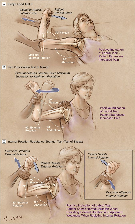 Shoulder Instability or Labral Lesion?