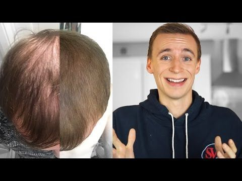 How I Got My Hair Back (Male Pattern Baldness) -  How To Stop Hair Loss And Regrow It The Natural Way! CLICK HERE! #hair #hairloss #hairlosswomen #hairtreatment My journey with Male pattern baldness, talking about hair transplants and hair loss medication like Finasteride. Subscribe for future videos:  TWITTER: INSTAGRAM: SNAPCHAT:   - #HairLoss