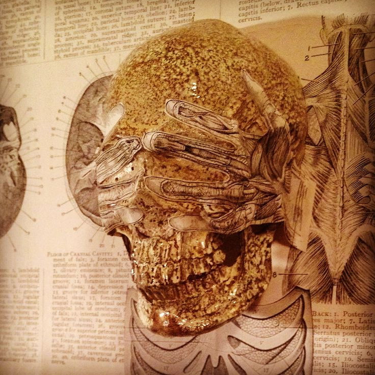 """""""Exposed"""" by SKOLLTOR. Close-up section of skull lowbrow art, three-dimensional wall sculptural piece."""