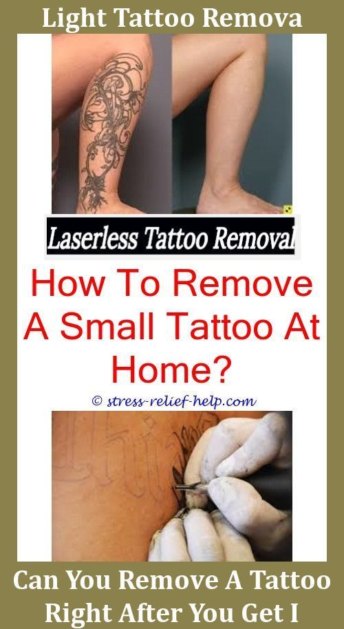 Does Laser Tattoo Removal Hurt Yahoo,india ink tattoo removal.Tattoo ...